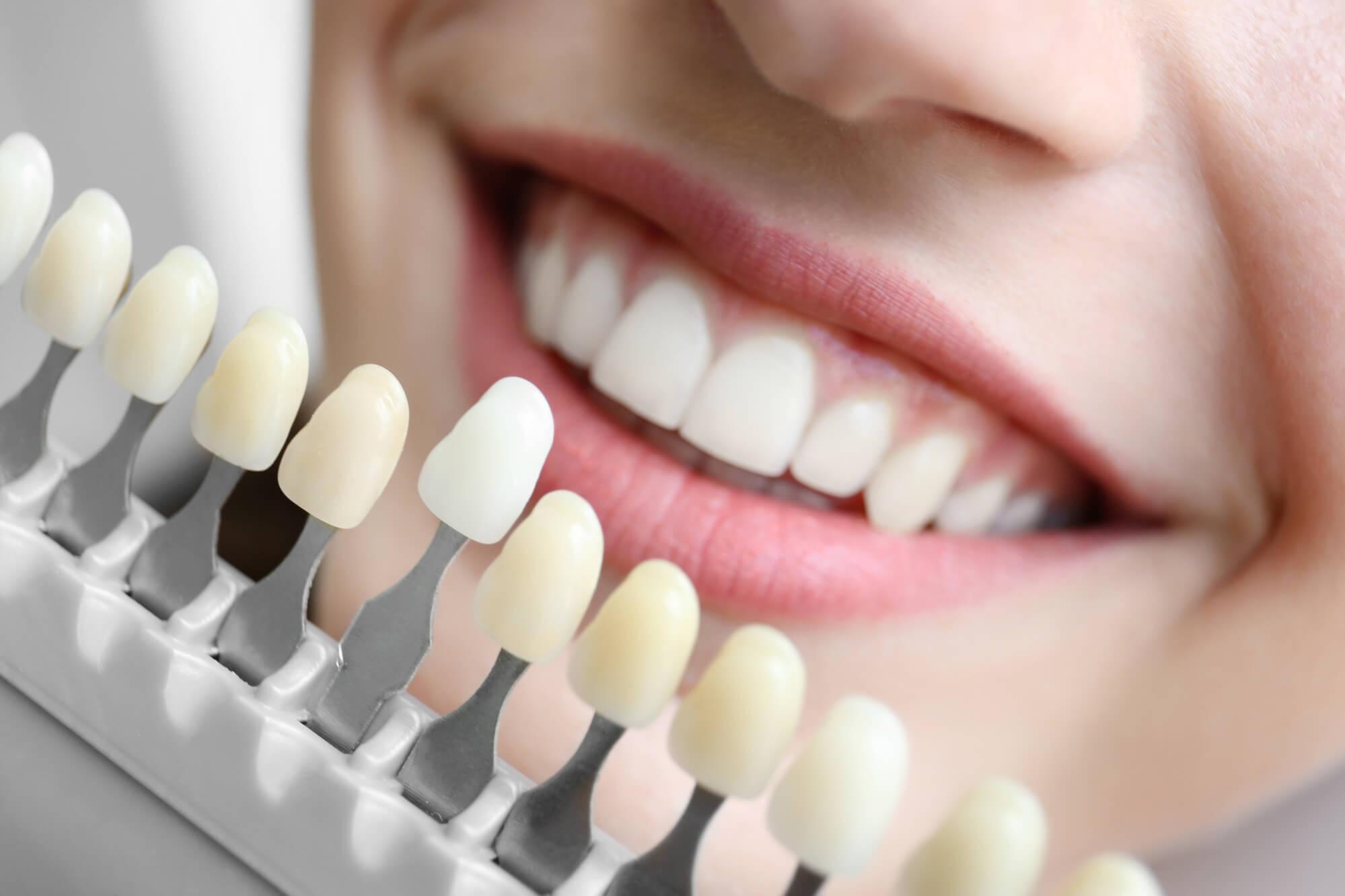 Prótese e Implante Dentário em Curitiba